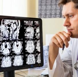 A incrível capacidade do cérebro de se regenerar