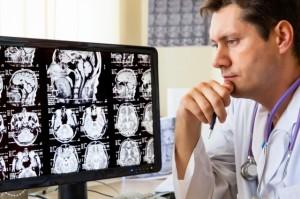 Dá para viver com metade do cérebro? - SUPERA - Ginástica para o Cérebro