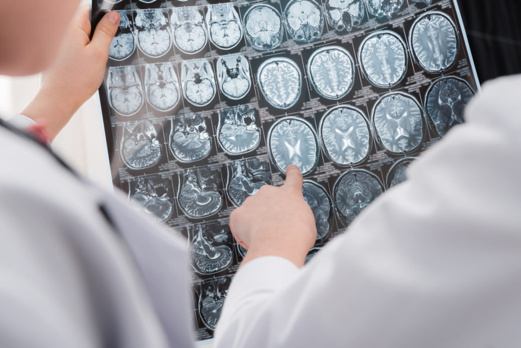 Estudo revela criação de novos neurônios até os 90 anos - SUPERA - Ginástica para o Cérebro